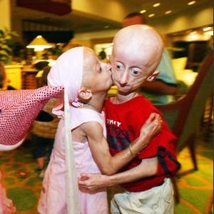 Children with progeria hugging